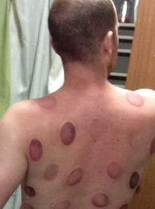 I took this picture about an hour after the cupping treatment.